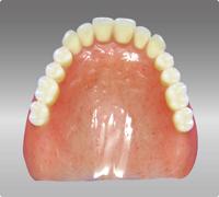 dentures_img009