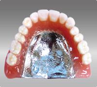 dentures_img011